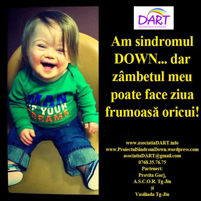 Photo of Comunicat de presă: Sindromul DOWN. Oportunități și Temeri