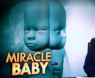 Photo of Părinții se luptă să-și salveze copilul nenăscut cu două fețe, deși medicii sugerează avortul