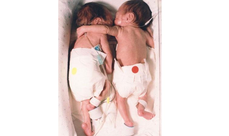 Photo of Îmbrățișarea care a salvat-o pe Kyrie