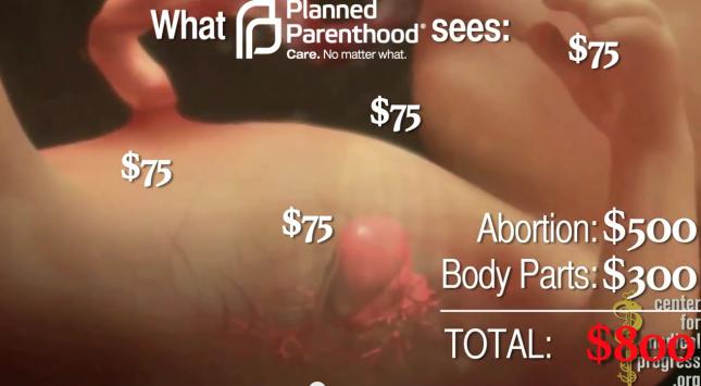 Photo of VIDEO ȘOCANT: Personalul clinicilor de avort din SUA cotrobăie prin rămășițele copiilor avortați, vânzând pe piața neagră tot ce e intact