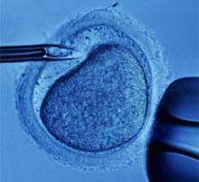Photo of Ce se ascunde despre fertilizarea in vitro