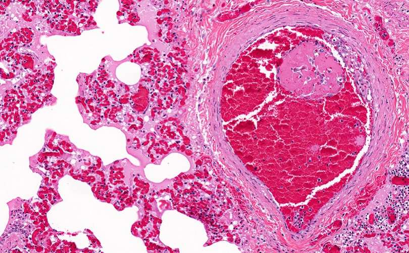 Photo of O tânără de 23 de ani care lua anticoncepționale a decedat în urma unui embolism pulmonar