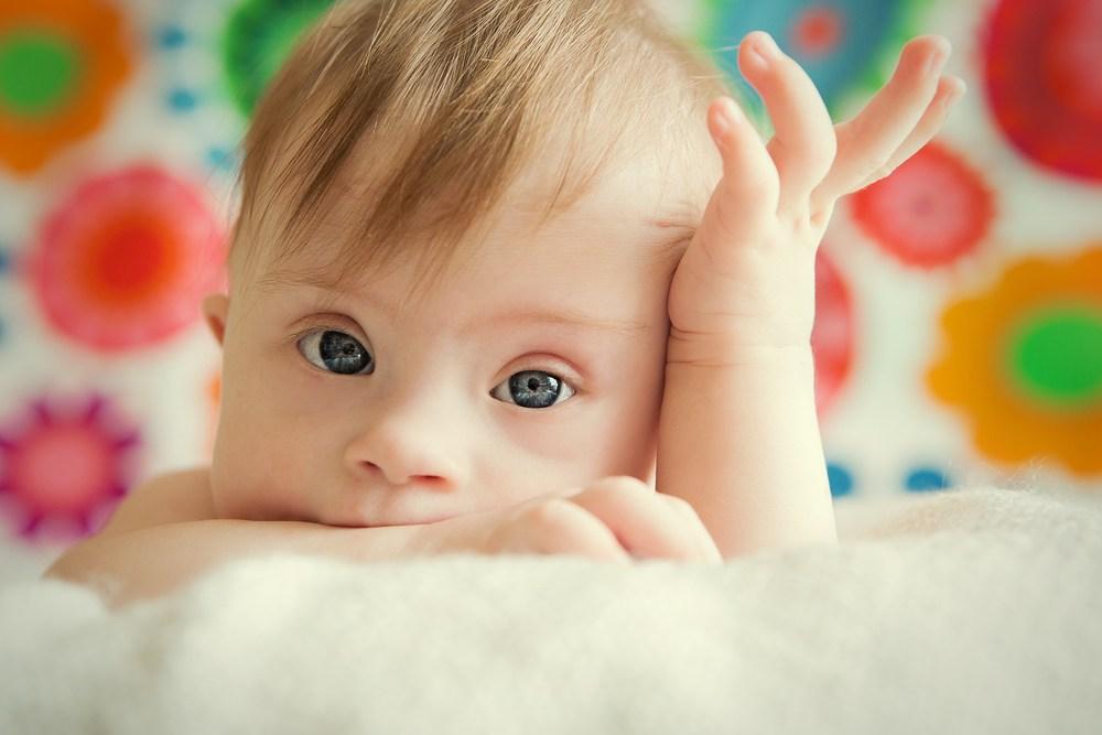 """Photo of Avortul ne conduce la """"o lume fără Sindrom Down"""". Mai precis, fără copii cu Sindrom Down"""