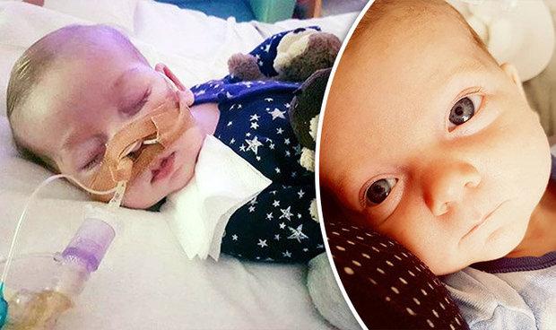 Photo of Bebelușul Charlie Gard a deschis ochii și i-a privit pe părinții săi înainte de a muri