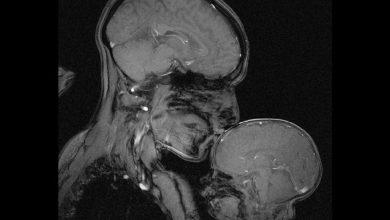 Photo of Imaginea obținută printr-un RMN arată legătura specială dintre mama și bebelușul ei