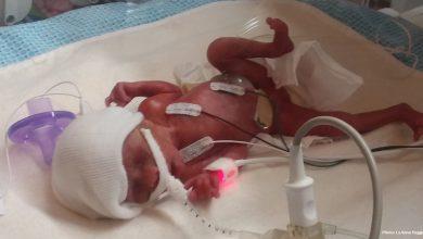 Photo of Miracol: Născută la 24 de săptămâni fetița mea a supraviețuit unei sarcini de mare risc