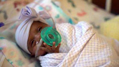 Photo of Miracolul vieții: Cel mai mic bebeluş din lume, născut la 245 de grame, a fost externat VIDEO