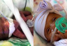"""Photo of Eliza Maria Cloțea: """"Patru lucruri pe care le învățăm din nașterea celui mai mic copil din lume, Saybie, de 245 grame"""""""