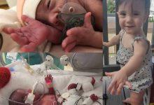 Photo of Bebelușa născută cu trei luni mai devreme are acum 1 an, crește și înflorește