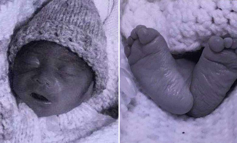 Photo of Copilul cu spina bifida care s-a născut viu după avortul eșuat și a murit plângând în brațele mamei sale